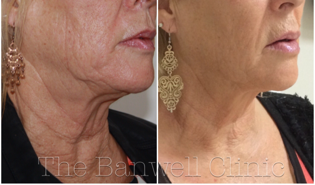 Professional Beauty - Latest Non- Surgical Facelift Proves Huge Success