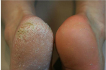 Callus Peel before and after