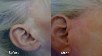 BCI scar cover with micropigmentation