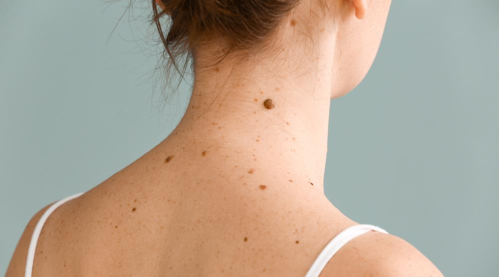 Should Therapists Understand Early Skin Cancer Detection