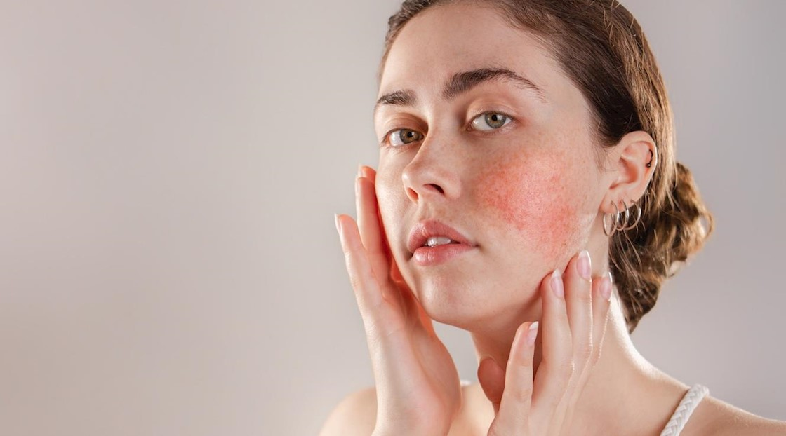 Understanding Rosacea Causes Symptoms Skincare And Treatments